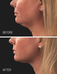 Coolsculpting-Chin